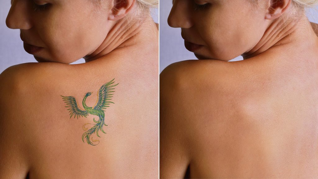 Премахване на татуировки