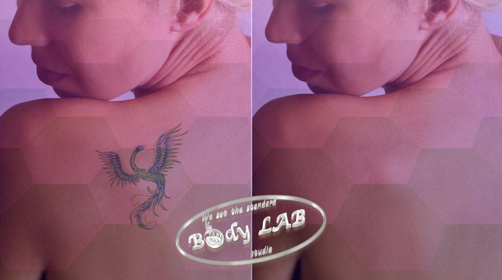 Премахване на татуировки и перманентен грим от BodyLAB Studio