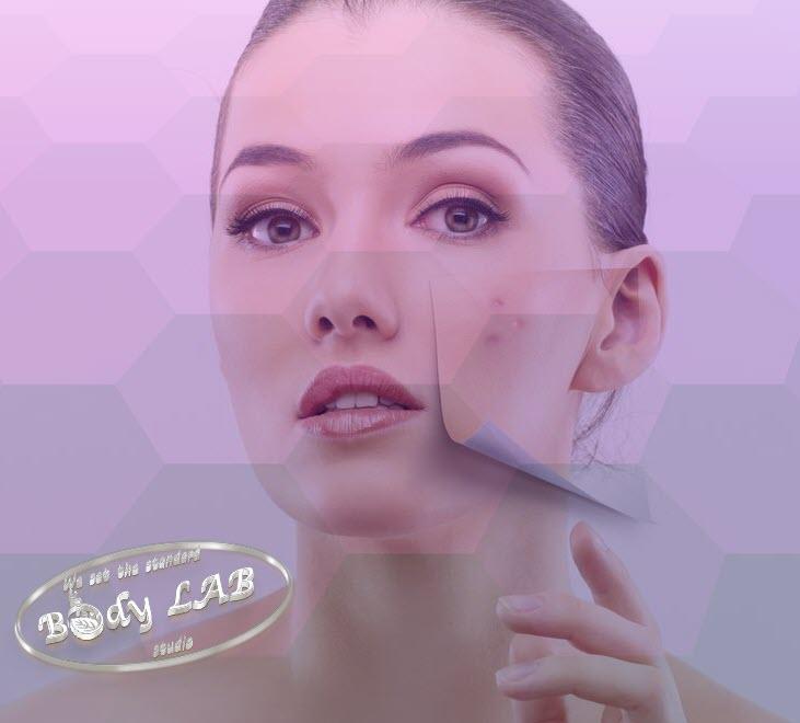 Лазерно лечение на акне от BodyLAB Studio