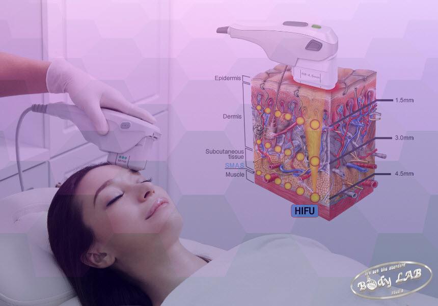 HIFU ХАЙФУ 3D апарат въздействие